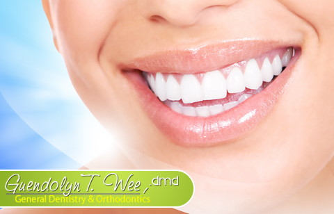 Laser Teeth whitening Sessions with Free Oral Prophylaxis and Consultation <i>Quezon City</i>